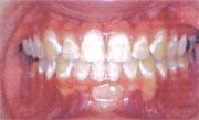 Nieprawidłowa higiena jamy ustnej.